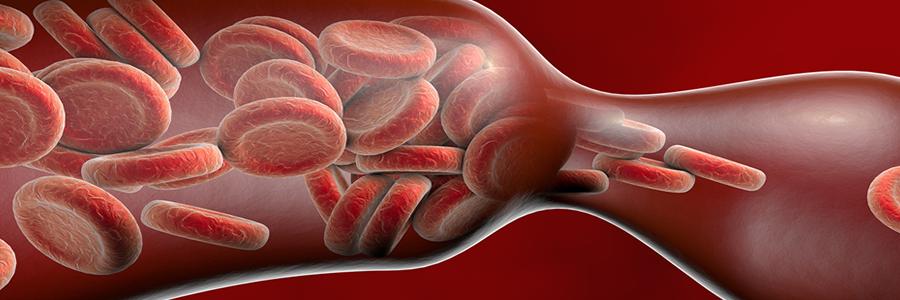 Treatments - Thrombolysis