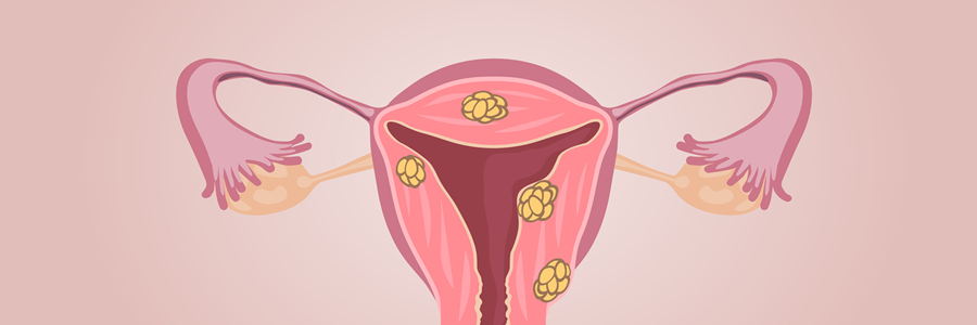 Treatments - Uterine