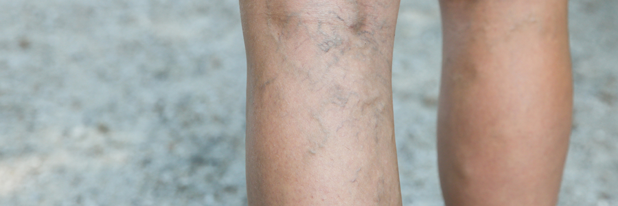 Treatments - Varicose Veins