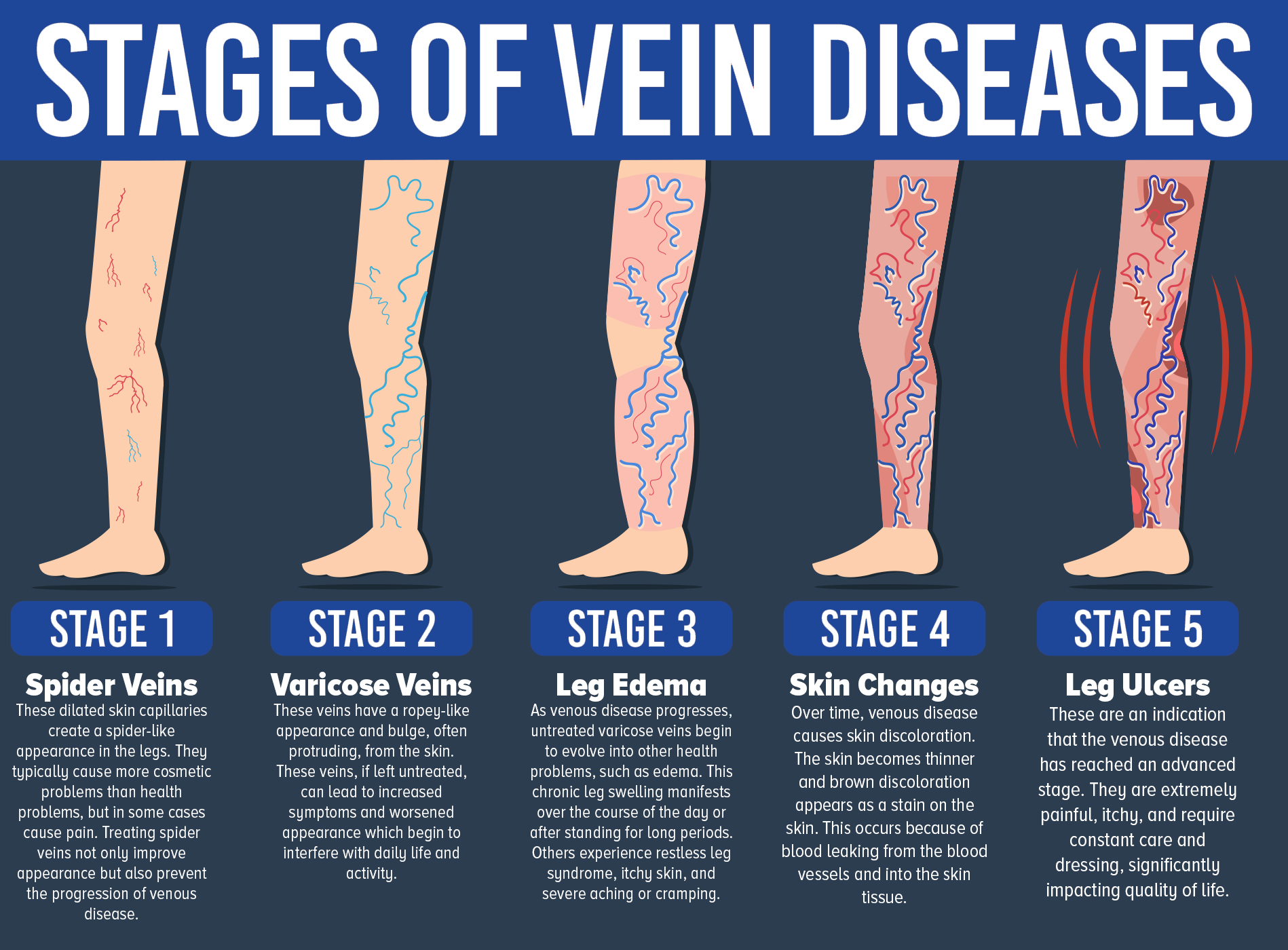 Stages of Vein Diseases