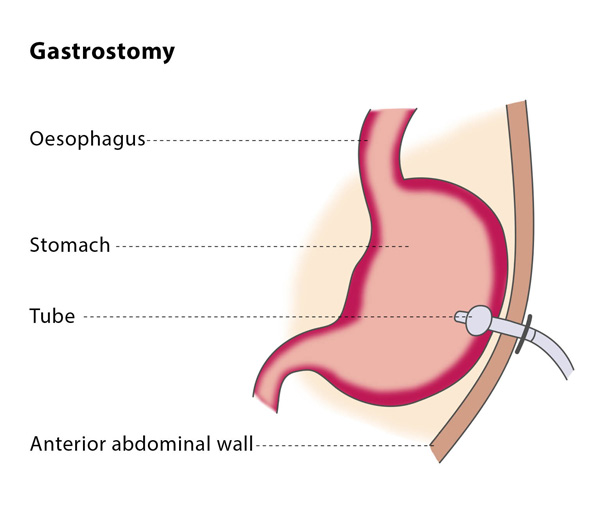 Gastrostomy Tube (G-Tube)